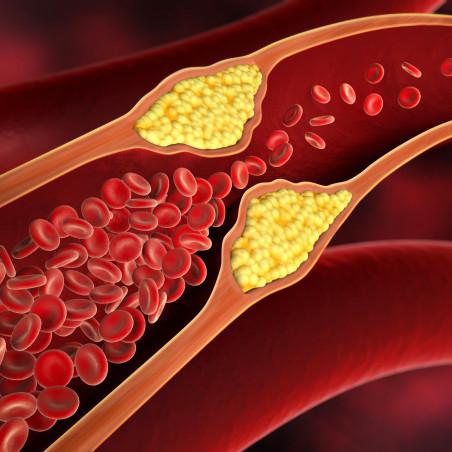 Colesterol y triglicéridos